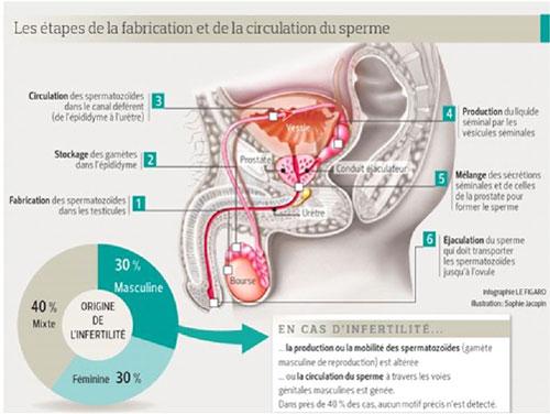stérilité masculine pdf